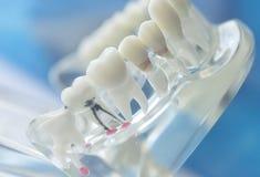 Οδοντικό στοματικό πρότυπο δοντιών στοκ φωτογραφία