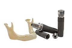 οδοντικό τιτάνιο μοντέλων & Στοκ φωτογραφία με δικαίωμα ελεύθερης χρήσης