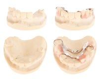 οδοντοστοιχία κοβαλτί&om στοκ εικόνες με δικαίωμα ελεύθερης χρήσης