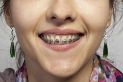 Οδοντοστοιχίες με τα στηρίγματα στοκ φωτογραφία