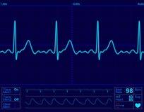 οθόνη μηνυτόρων καρδιών Στοκ φωτογραφία με δικαίωμα ελεύθερης χρήσης