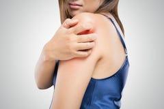 Οι άνθρωποι γρατσουνίζουν φαγουρίζουν με το χέρι στοκ φωτογραφία με δικαίωμα ελεύθερης χρήσης