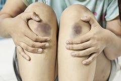 Οι γυναίκες έχουν τους μώλωπες στα πόδια στοκ φωτογραφίες με δικαίωμα ελεύθερης χρήσης