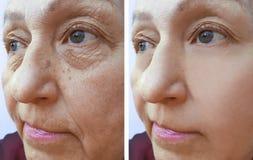 οι γυναίκες ζαρώνουν πριν και μετά από τις διαδικασίες Στοκ Εικόνες