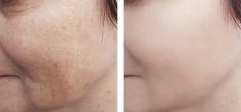 Οι θηλυκές ρυτίδες ματιών η διαδικασία επίδρασης τ πριν μετά από cosmetology επεξεργασιών στοκ εικόνα με δικαίωμα ελεύθερης χρήσης