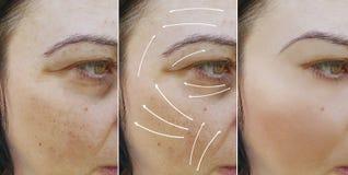 Οι του προσώπου ρυτίδες γυναικών οδηγούν πριν και μετά από το removaltreatment διαδικασιών στοκ φωτογραφίες