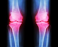 Οστεοαρθρίτιδα και το δύο γόνατο το των ακτίνων X AP ταινιών (προηγούμενο - οπίσθιο τμήμα) του γονάτου παρουσιάζει στενό κοινό δι Στοκ Εικόνες