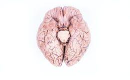 ο άνθρωπος εγκεφάλου α&p Στοκ Φωτογραφίες
