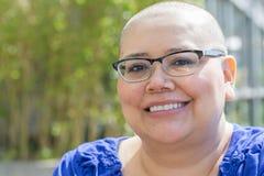 Ο ασθενής με καρκίνο εξετάζει την απώλεια τρίχας στοκ εικόνα