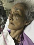 Ο ασιατικός ανώτερος ασθενής γυναικών που βρίσκεται στο κρεβάτι στο νοσοκομείο, μόλυνση ιών, χαμηλά αιμοπετάλια αίματος, μώλωπες, στοκ εικόνες