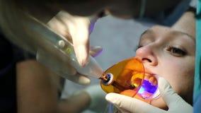 Ο βοηθός λάμπει με οδοντικός υπεριώδης λαμπτήρας πολυμερισμού στην κινηματογράφηση σε πρώτο πλάνο δοντιών ασθενών οδοντίατρος που φιλμ μικρού μήκους