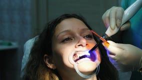 Ο βοηθός οδοντιάτρων λάμπει με οδοντικός υπεριώδης λαμπτήρας πολυμερισμού στην κινηματογράφηση σε πρώτο πλάνο δοντιών ασθενών Επί απόθεμα βίντεο