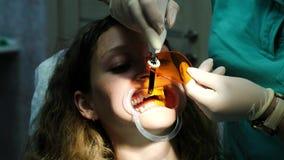 Ο βοηθός οδοντιάτρων λάμπει με οδοντικός υπεριώδης λαμπτήρας πολυμερισμού στα δόντια ασθενών Επίσκεψη στο stomatologist απόθεμα βίντεο