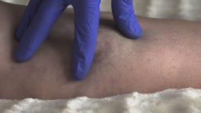 Ο γιατρός εξετάζει τα πόδια ενός θηλυκού ασθενή ο οποίος κιρσώδεις φλέβες και θρομβοφλεβίτιδα απόθεμα βίντεο
