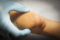Ο γιατρός εξετάζει το υπομονετικό πόδι ` s στα μπλε γάντια Το τακούνι όλα προκαλείται φουσκάλες και ραγίζεται Κινηματογράφηση σε  στοκ εικόνα με δικαίωμα ελεύθερης χρήσης