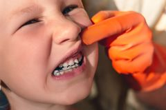 Ο γιατρός προσπαθεί να δει το στόμα ενός μικρού κοριτσιού με μια orthodontic συσκευή και στριμμένα δόντια στοκ φωτογραφία με δικαίωμα ελεύθερης χρήσης