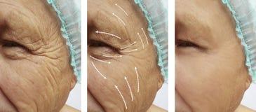 Ο ηληκιωμένος με τις ρυτίδες στο πρόσωπο οδηγεί cosmetology διαφοράς πριν και μετά από το βέλος διαδικασιών στοκ εικόνα με δικαίωμα ελεύθερης χρήσης
