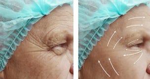 Ο ηληκιωμένος με τις ρυτίδες στο πρόσωπο οδηγεί cosmetology πριν και μετά από το βέλος διαδικασιών στοκ φωτογραφία