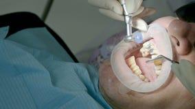 Ο θηλυκός οδοντίατρος με έναν βοηθό εξετάζει το στόμα του ασθενή ενός ατόμου ενός ηλικίας ατόμου Υψηλή βασική επαγγελματική εργασ φιλμ μικρού μήκους