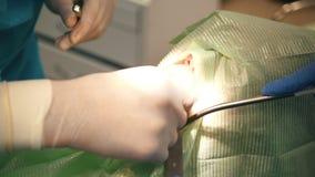 Ο οδοντίατρος γιατρών εκτελεί μια τοπική αναισθησία διαδικασίας κατά τη διάρκεια της χειρουργικής επέμβασης στοματολογίας φιλμ μικρού μήκους