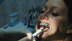 Ο οδοντίατρος εφαρμόζει τη orthodontic μπλε κόλλα στα δόντια στη γυναίκα στο σύρτη πριν από να εγκαταστήσει το σύστημα υποστηριγμ φιλμ μικρού μήκους