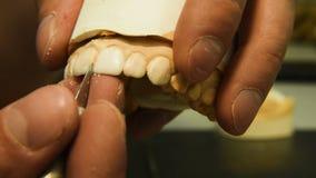Ο οδοντίατρος κάνει το οδοντικό μόσχευμα φιλμ μικρού μήκους