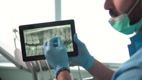 Ο οδοντίατρος παρουσιάζει ακτίνα X στην ταμπλέτα φιλμ μικρού μήκους