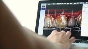 Ο οδοντίατρος παρουσιάζει στον ασθενή ένα στιγμιότυπο των δοντιών του φιλμ μικρού μήκους