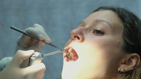 Ο οδοντίατρος πλένει τα δόντια του με έναν καθρέφτη σε μια όμορφη Ευρωπαία γυναίκα οδοντίατρος που επισκέπ φιλμ μικρού μήκους