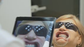 Ο οδοντίατρος σε ένα ειδικό πρόγραμμα υπολογιστών που φορτώνεται στην ταμπλέτα ελέγχει και ρυθμίζει το δάγκωμα Δίνει τη φωτογραφί απόθεμα βίντεο
