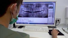 Ο οδοντίατρος φαίνεται πανοραμικός πυροβολισμός του σαγονιού στον υπολογιστή οδοντικό γραφείο φιλμ μικρού μήκους