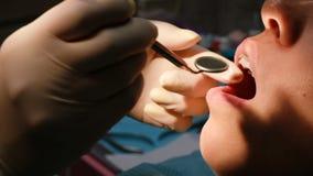 Ο οδοντίατρος Orthodontist τραβά το τόξο στην κινηματογράφηση σε πρώτο πλάνο συστημάτων υποστηριγμάτων με την κινηματογράφηση σε  απόθεμα βίντεο