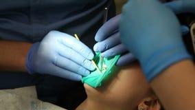 Οδοντίατρος που μεταχειρίζεται το τα υπομονετικά δόντια ` s με τα οδοντικά εργαλεία στην οδοντική κλινική οδοντιατρική φιλμ μικρού μήκους