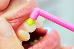 Οδοντίατρος που παρουσιάζει μια γυναίκα πώς να βουρτσίσει τα δόντια της Στοκ Εικόνες