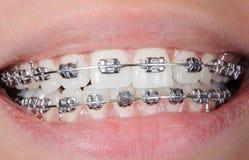 Οδοντικά στηρίγματα κινηματογραφήσεων σε πρώτο πλάνο στα δόντια orthodontic επεξεργασία στοκ εικόνες με δικαίωμα ελεύθερης χρήσης