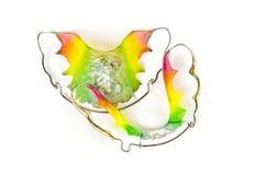 Οδοντικά στηρίγματα Στοκ εικόνα με δικαίωμα ελεύθερης χρήσης