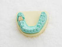 Οδοντική κορώνα Στοκ Εικόνες