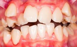 Οδοντική μετατόπιση Στοκ Εικόνα