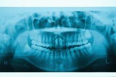 οδοντική πανοραμική ακτίνα Χ στοκ φωτογραφίες με δικαίωμα ελεύθερης χρήσης