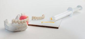 Οδοντική τέχνη Στοκ Φωτογραφία