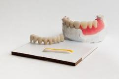 Οδοντική τέχνη Στοκ εικόνες με δικαίωμα ελεύθερης χρήσης