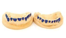 Οδοντική φόρμα δοντιών Στοκ Φωτογραφίες