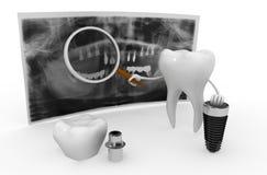 οδοντικό λευκό όψης στοιχείων απομονωμένο μόσχευμα Στοκ εικόνες με δικαίωμα ελεύθερης χρήσης