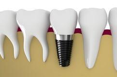 οδοντικό λευκό όψης στοιχείων απομονωμένο μόσχευμα Στοκ Φωτογραφία