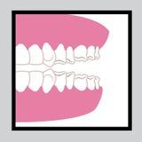 Οδοντικό σχέδιο Στοκ εικόνα με δικαίωμα ελεύθερης χρήσης