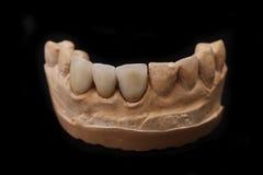 Οδοντικό Prothetic εργαστήριο. Τεχνικοί πυροβολισμοί. Στοκ εικόνες με δικαίωμα ελεύθερης χρήσης