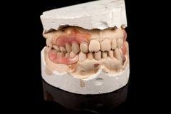 Οδοντοστοιχίες σε ένα ασβεστοκονίαμα χυτό Στοκ Εικόνα