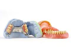οδοντοστοιχίες Στοκ Εικόνα
