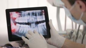 Ο οδοντίατρος παρουσιάζει υπομονετική ακτίνα X στην ταμπλέτα απόθεμα βίντεο