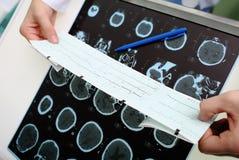 Ο παθολόγος εξετάζει τα οργανικά στοιχεία ασθενών Στοκ εικόνα με δικαίωμα ελεύθερης χρήσης